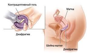 Барьерные контрацептивы